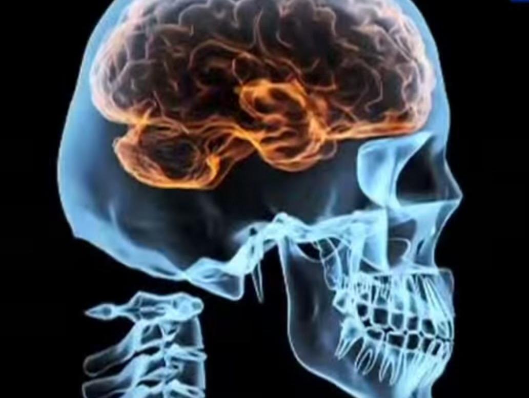 Очень болит голова нет таблеток