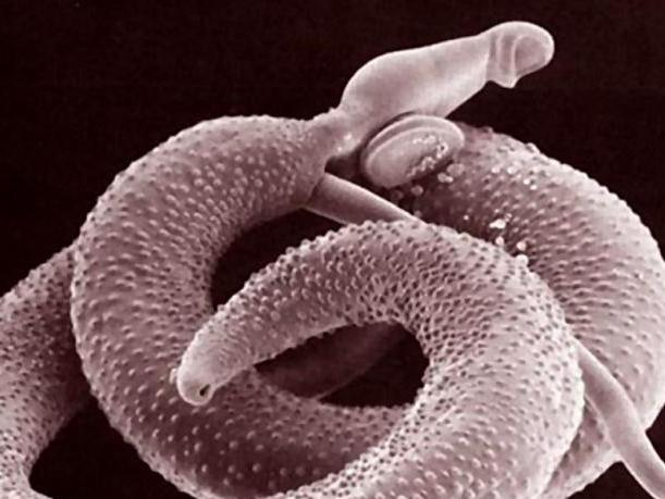 paraziti schistosoma mansoni)